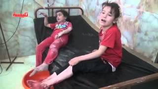 2.Видео кровавых последствий бомбардировки самолетами РФ Сирии (18)
