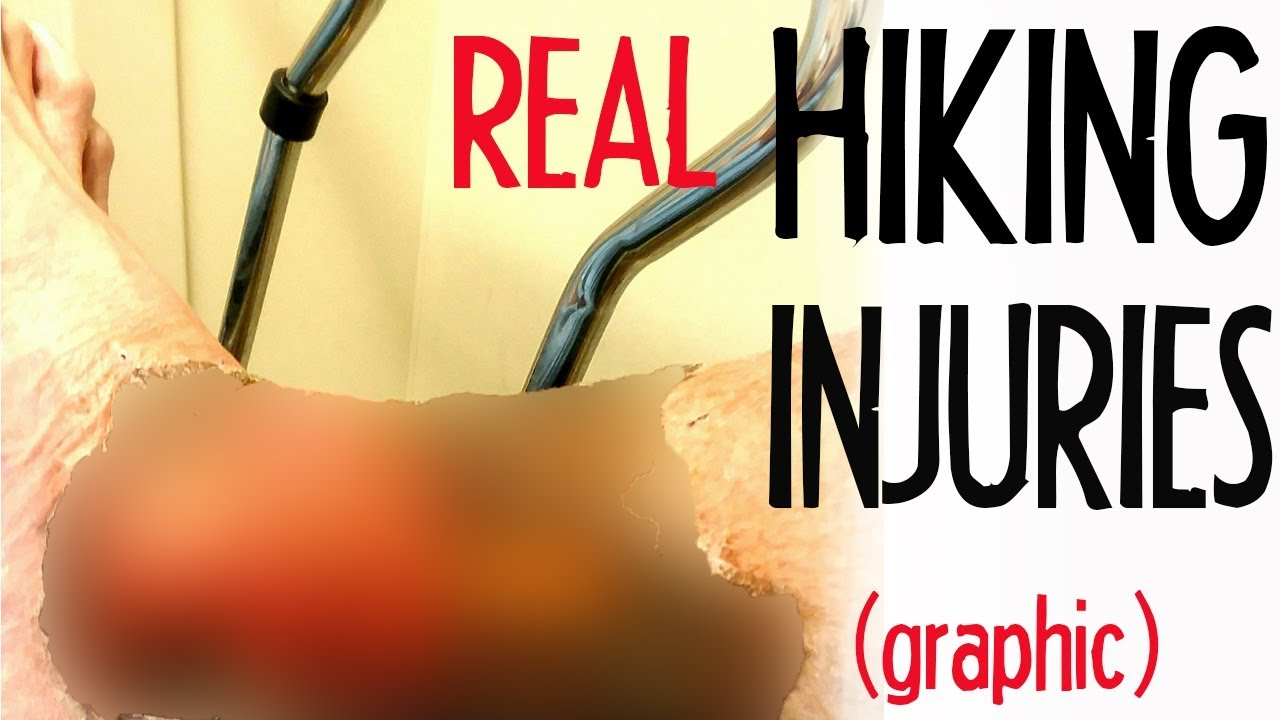 Real Hiking Injuries (graphic)