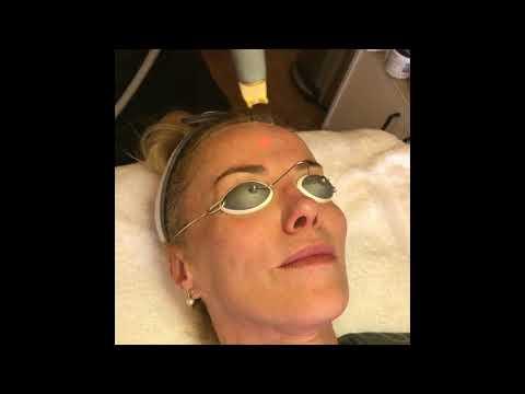 Laser Genesis on Female Patient - Saltz Spa Vitoria