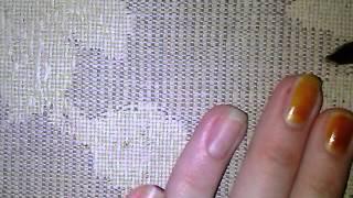 видео Йод для нігтів