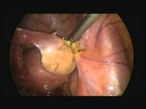 endometrial cancer laparoscopic hysterectomy giardia e albendazol