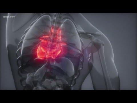 Answering your questions about how the coronavirus can impact those with heart disease