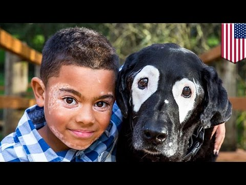 Skin conditions: Boy with vitiligo uplifted after meeting dog with same disorder - TomoNews
