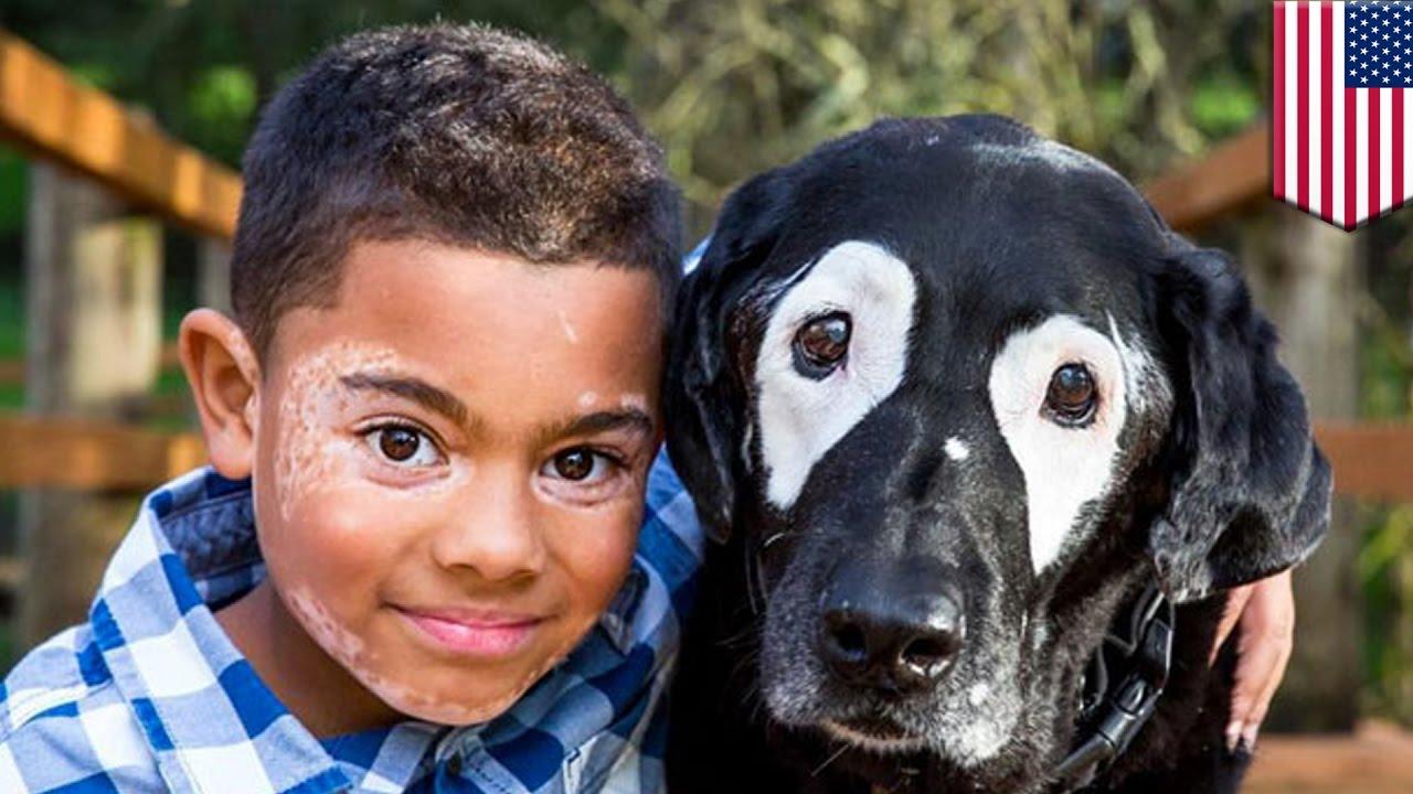 férgek és vitiligo