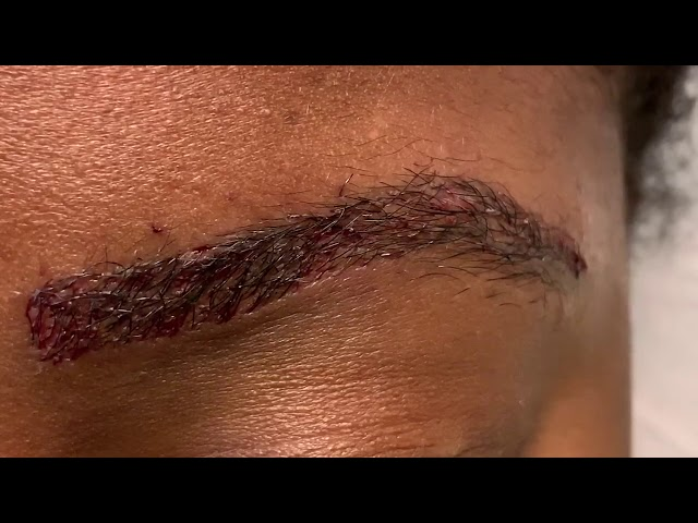 Dallas African-American Eyebrow Transplant Closeup Immediately After