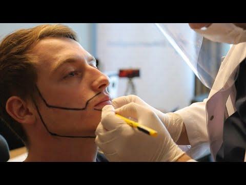 Die Komplette Reise zu einem Vollen Bart | Barttransplantation Türkei