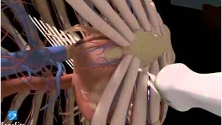 3D-посібник: Отримання ехокардіографічного зображення в парастернальній проекції по короткій осі