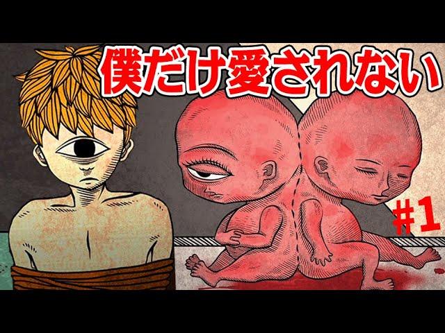 シャム双生児として産まれた双子の悲劇的ホラー【Life Gallery #1】
