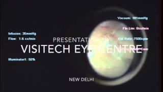 Vitrectomy - Laser Eye Treatment in Delhi