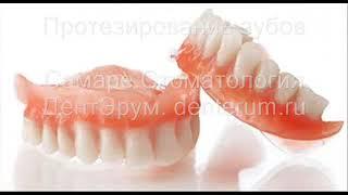Протезирование зубов в Самаре.(, 2017-10-09T19:19:06.000Z)