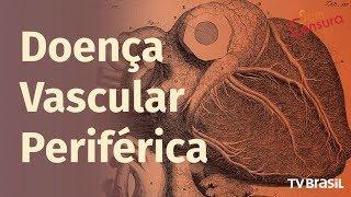 Estenose da vascular artéria doença periférica