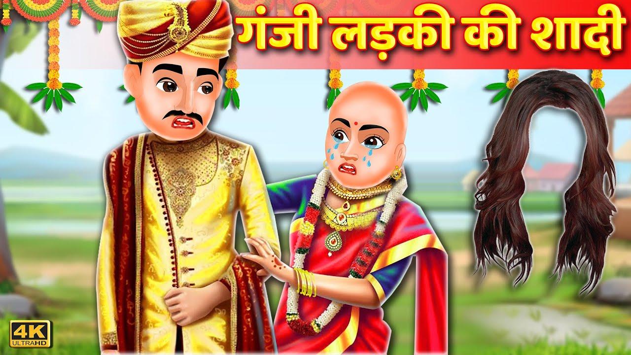गंजी लड़की की शादी   Bald Head Daughter Marriage Hindi Kahani  Hindi Moral Stories Hindi Fairy tales