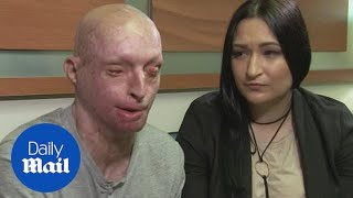 Acid attack victim found love again with the carer who nursed him - Daily Mail