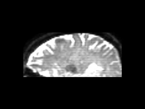 Diffusion tensor imaging (DTI) of the corpus callosum on 3.0 Tesla MRI process