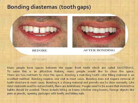 Boca Raton Dentist, Dentist Boca Raton   barbagdental com