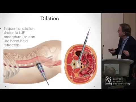 Oblique Lumbar Interbody Fusion (OLIF) - Kevin T. Foley, MD