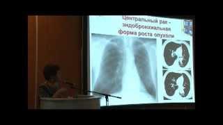 видео лучевая диагностика