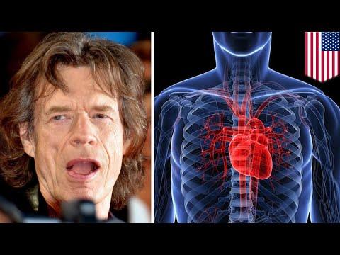 Mick Jagger set to undergo heart valve replacement surgery - TomoNews