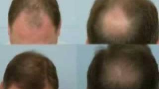 Forhair.com - Hair Transplant Video Results