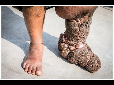Filariasis Or Elephantiasis Causes Symptoms And Treatment
