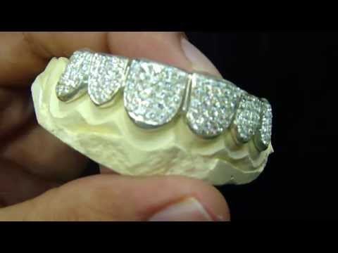 Mr Chris Da Jeweler Iced out Lab Diamond Grillz : We make Gold teeth