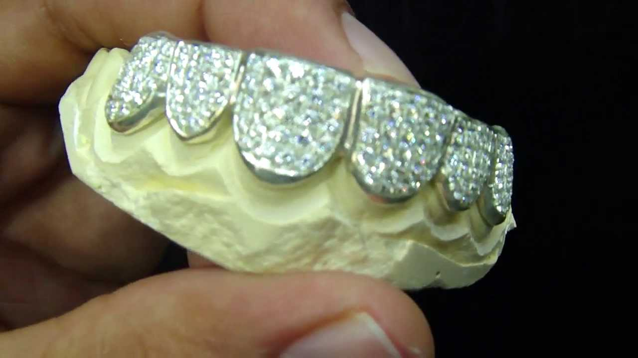 Mr Chris Da Jeweler Iced out Lab Diamond Grillz   We make Gold teeth -  YouTube d23a9f865