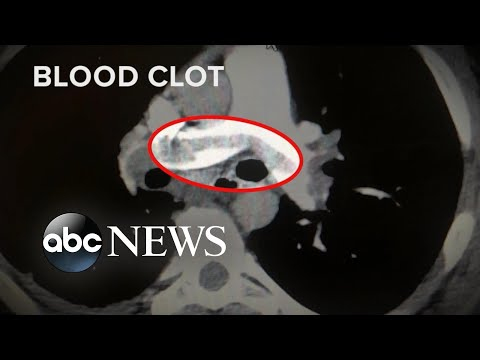 High number of COVID-19 patients have blood clots | WNT