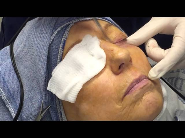 Colorado Springs Cosmetic Lower Eyelid Blepharoplasty by Dr. John Burroughs