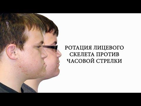 Видео-разбор. Ортогнатическая операция по исправлению прикуса в клинике Фэйс Смайл центр