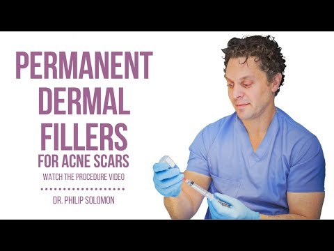 Permanent Dermal Fillers for Acne Scars | Dr. Philip Solomon
