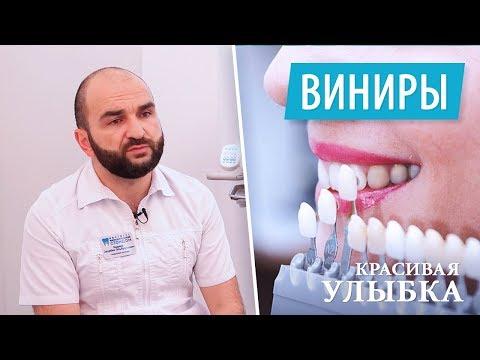Виниры для зубов - что это такое. Красивые зубы. Установка виниров.