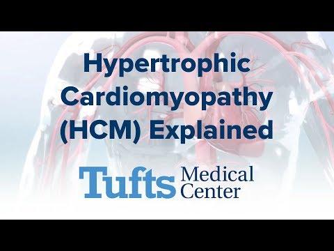 Hypertrophic Cardiomyopathy (HCM) - Explained