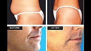 [MACRI MD] Laser Liposuction Bergen County NJ 201-358-2922