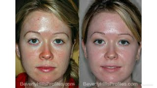 Best facial form for glowing skin in 3 days(100%result)