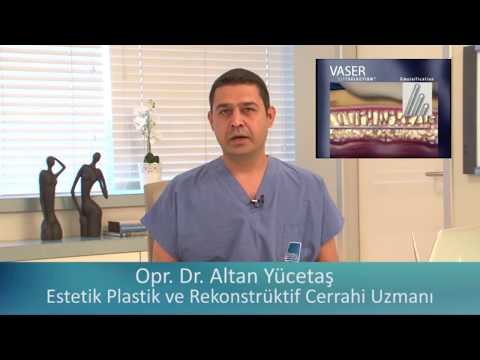 Vaser Lipo Liposuction Ameliyatı Nedir Hi def Liposakşın Fiyatları Jinekomasti