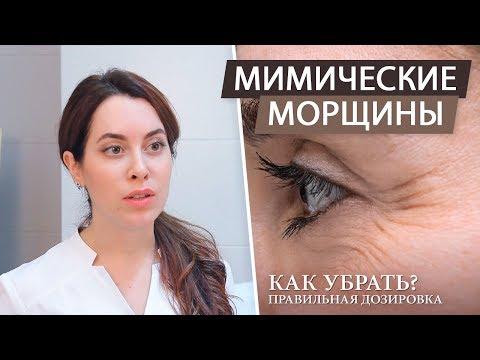 Как убрать мимические морщины на лбу и глазах с помощью ботокса