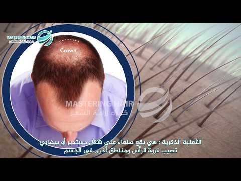 تعرف أكثر على طرق الصلع الوراثي مع مشفى MASTERING HAIR