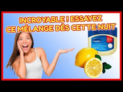 melange-le-citron-et-la-vaseline-:les-resultats-sont-incroyables