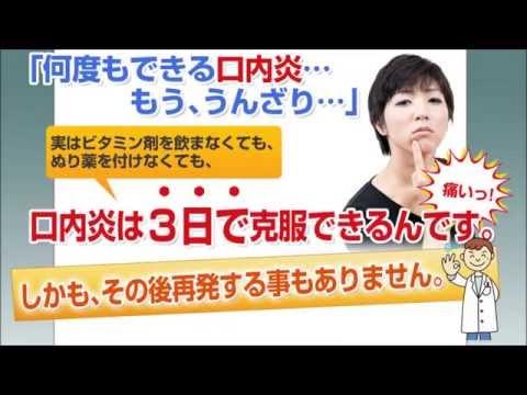 口内炎で悩む東京のOL・主婦は多いよね!
