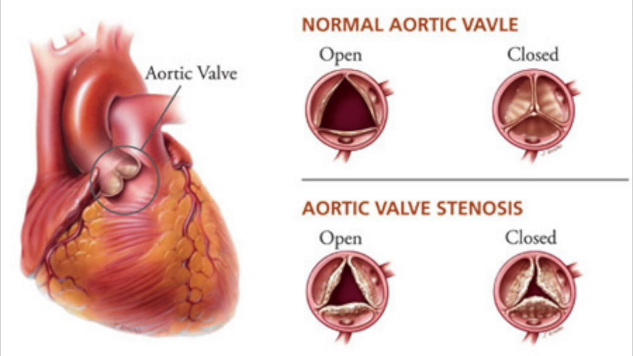 Heart Valves: Pyrolytic Carbons - YouTube