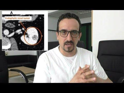 gallucci urologia prostata