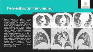 Disseminated intravascular coagulation (DIC) - Causes, Symptoms, Treatment and prognosis.