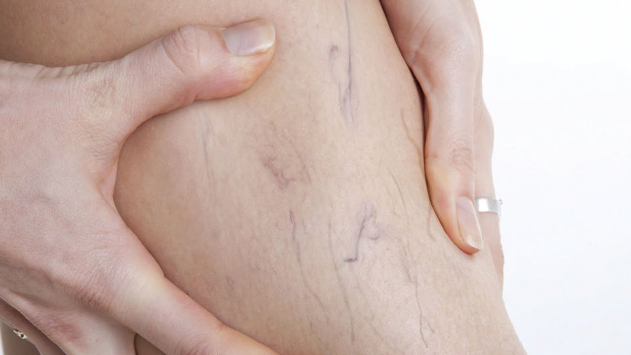 How to Remove Spider Veins advise