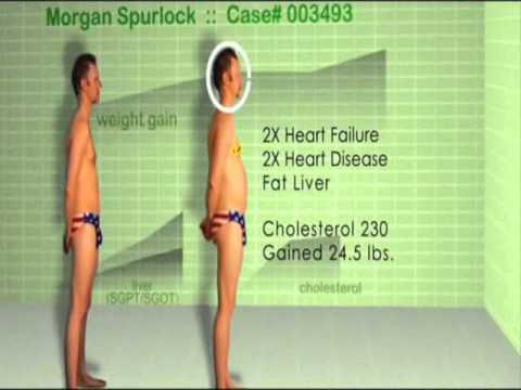 consecuencias experimento Morgan Spurlock mcdonalds - YouTube