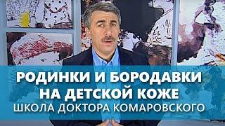Родинки и бородавки на детской коже - Школа доктора Комаровского