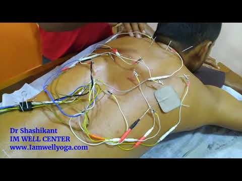 Acupuncture and Moxa Treatment for Backpain