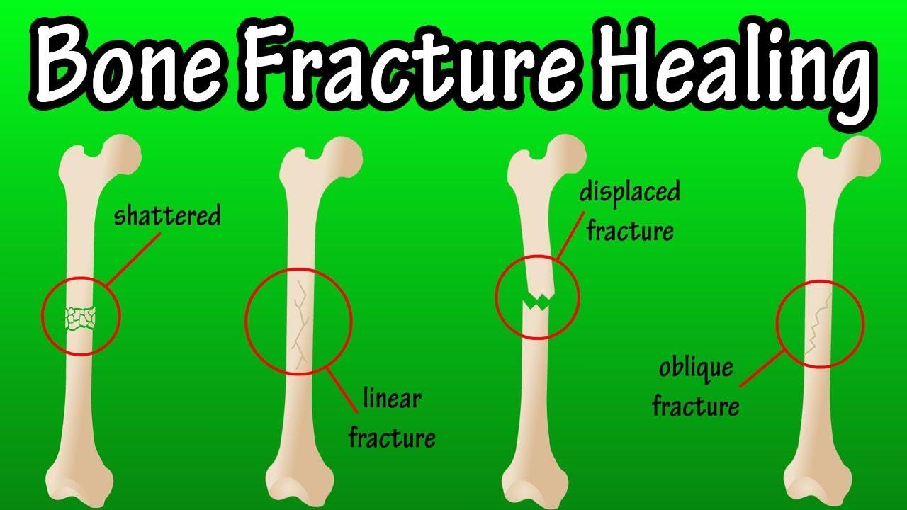 How Does A Bone Break Heal Bone Fracture Healing Process Youtube