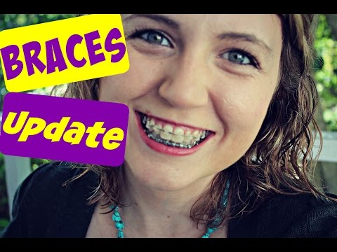Braces Update Number Four | Custom Wires and Rubber Bands