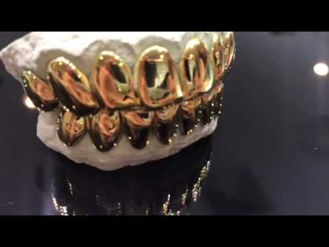 10K solid yellow gold perm cut grillz REAL DEAL