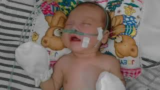 First Aid - CARA ATASI EPILEPSI.
